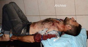 heridos-ataques-contra-alepo-660x330